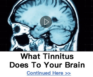 What Tinnitus Does To Your Brain